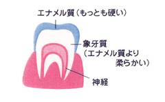 知っておきましょう虫歯の進行状況